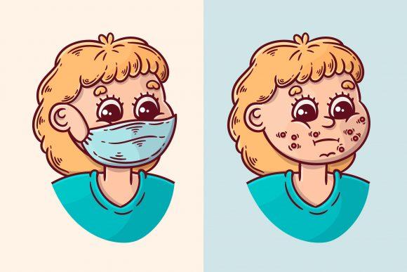 Read more about the article Ce este maskne și cum scăpăm de iritațiile produse de masca de protecție